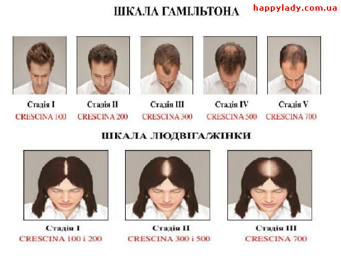 Crescina Labo как выбрать и применять ампулы от выпадения волос