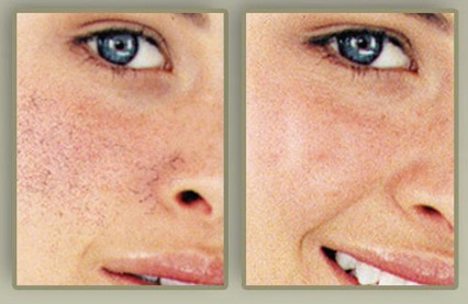 skin doctors capillary clear reviews